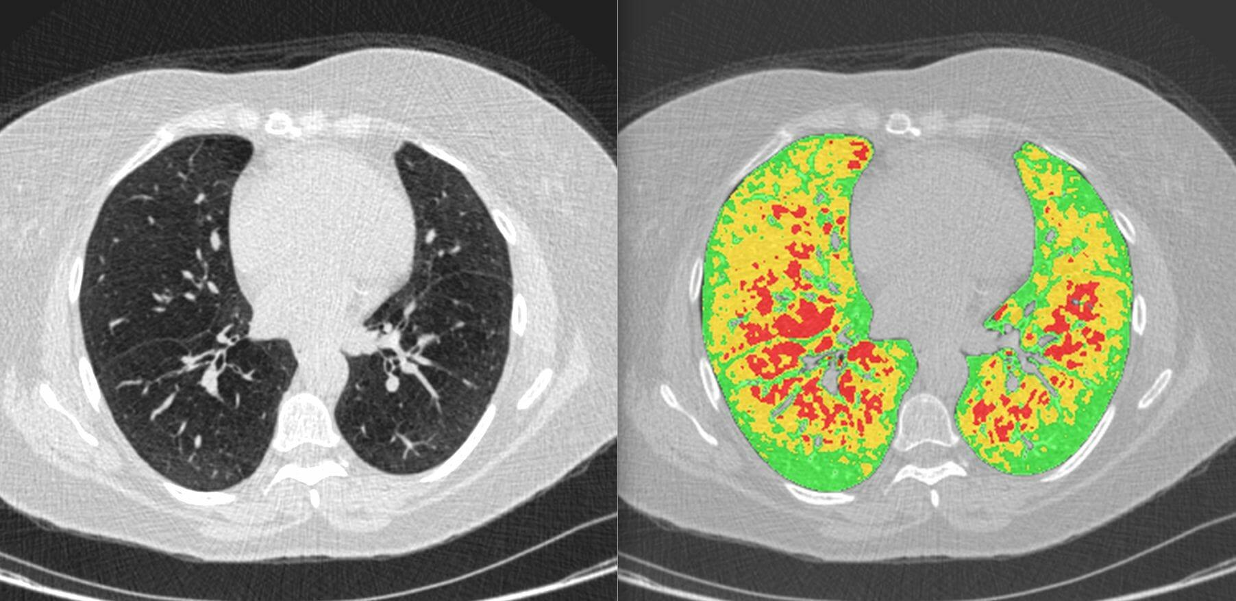 LDA Functional_Osirix screenshot (COPD subject)